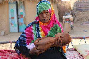 hambruna-africa-2017-yemen